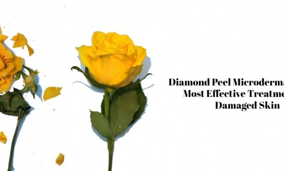 Diamond Peel Microdermabrasion- Most Effective Treatment for Damaged Skin